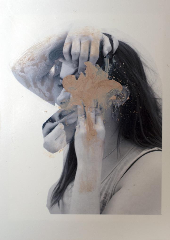 Rosanna Jones - Skin | Progetto fotografico sullo stereotipo di bellezza
