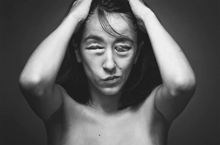 I corpi surreali di Ángela Burón | Collater.al